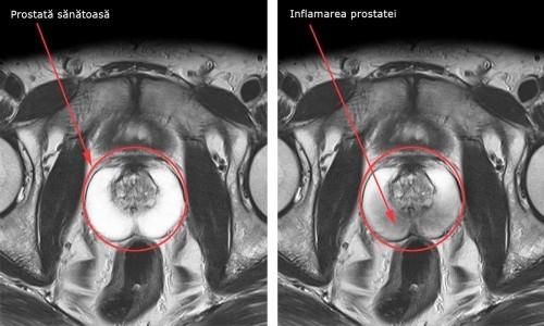 Prostata - Infectiile aparatului genital masculin