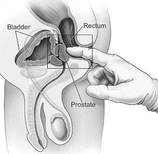 gyógyszerek prosztatitis
